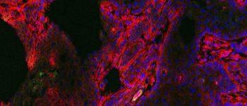 قرص درخشان کننده تومورهای سرطانی ساخته شد